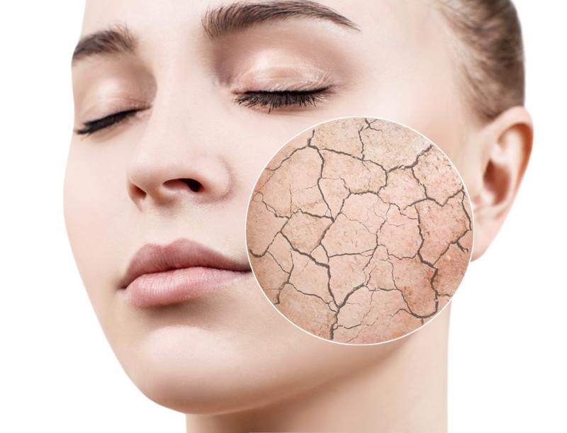 肌荒れに美容皮膚科